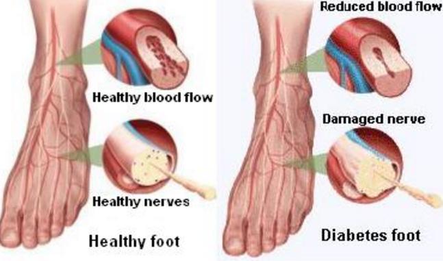 diyabetik-ayak-3