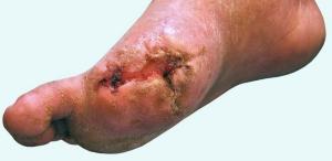 diyabetik-ayak